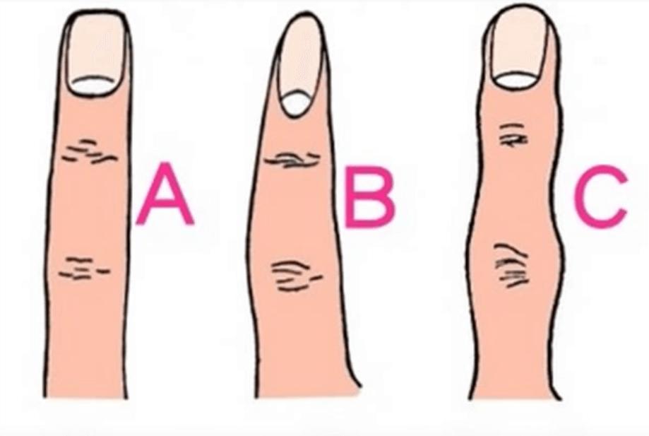 форма пальца